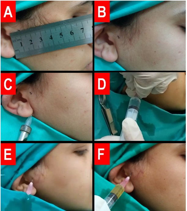 Figure (2): Steps A through F demonstrate the steps for the PRP injection Technique