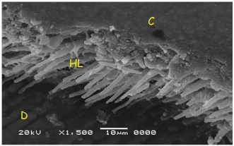 Figure (2): Scanning photomicrograph of resin/dentin interface, showing a thin hybrid layer that appears with short and ruptured dentin resin tags. HL: Hybrid layer; C: Composite resin; D: dentin (x 1500).