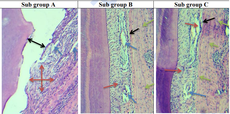 Fig. (1): Sub Gp, A: photomicrograph of the PDL fibers and adjacent bone of group II at day 7 showing complete disorganization of the PDL fibers with inflammatory cell infiltrate (red arrows), narrow longitudinal interstitial tissues (blue arrows) and cementum PDL detachment (black arrows).  Sub Gp B: photomicrograph of the PDL fibers and adjacent bone of group II at day 15 showing disorganization of the PDL fibers but with less inflammatory cell infiltrate than sub group A (red arrow), large interstitial tissues with congested B.V (blue arrows), PDL bone detachment at some areas (black arrow) and bone with resting lines and reversal lines (green arrows). Sub Gp C: photomicrograph of the PDL fibers and adjacent bone of group II at day 30 showing disorganization and tearing of the PDL fibers with more less inflammatory cell infiltrate than sub group B (red arrows), large interstitial tissues with congested B.V (blue arrow), PDL bone detachment at some areas (black arrow) and bone with resting lines and reversal lines (green arrows). (Org. mag. X100)