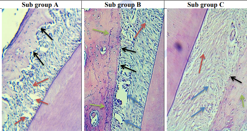 Fig. (2):Sub Gp A:  photomicrograph of the PDL fibers and adjacent bone of group III at day 7 showing irregular arrangement of the oblique fibers and tearing in some areas with some inflammatory cells infiltrate (red arrows) and irregular bone surface with abundant osteoblasts on the surface (black arrows). Sub Gp B:  photomicrograph of the PDL fibers and adjacent bone of group III at day 15 showing normal arrangement of the oblique fibers with less inflammatory cells infiltrate than sub group A (red arrow), wide multiple interstitial tissue (blue arrows), good PDL bone attachment with continuous layer of osteoblasts (black arrows) and clear reversible line denoting new bone formation (green arrows).  SubGp C: photomicrograph of the PDL fibers and adjacent bone of group III at day 30 showing normal oblique arrangement of fibers with no big difference of inflammatory cell infiltrate than subgroup B (red arrow), normal size interstitial tissue (blue arrows), very good attachment between bone and PDL with few osteoblasts on bone surface (black arrow) and multiple reversible lines (green arrows). (Org. mag. X100)