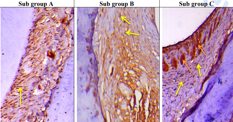 Fig. (4):Sub Gp A:  A photomicrograph of the PDL fibers of group II at 7th day showing active MMP-1 expression highlighted as brown cytoplasmic staining of PDL cells, fibroblast/fibrocyte (yellow arrows) and staining of the extracellular matrix between collagen fibers (orange arrows).  Sub Gp B:  A photomicrograph of the PDL fibers of group II at 15th day showing active  MMP-1 expression but lesser than subgroup A noticed as brown cytoplasmic staining of PDL cells, fibroblast/fibrocyte (yellow arrows) and extracellular matrix staining between collagen fibers (orange arrows). Sub Gp C: A photomicrograph of the PDL fibers of group II at 30th day showing active MMP-1 expression highlighted as brown cytoplasmic staining of PDL cells, fibroblast/fibrocyte (yellow arrows) and extracellularly in the extracellular matrix between collagen fibers (orange arrows). (Org. mag. x200 counterstain: Hematoxylin)