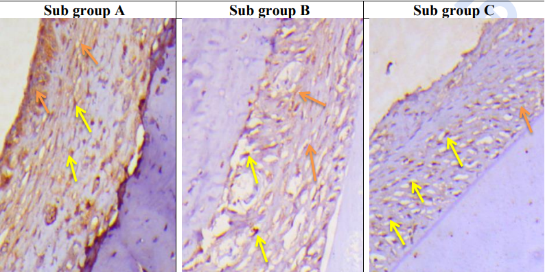 Fig. (5): Sub Gp A: A photomicrograph of the PDL fibers of group III at 7th day showing less immune-positive reaction to MMP1 than positive control group intracellularly in PDL cells, fibroblast/fibrocyte (yellow arrows) and extracellularly in the extracellular matrix between collagen fibers (orange arrows). Sub Gp B: A photomicrograph of the PDL fibers of group III at 15th day showing obvious reduction in MMP1 positive cytoplasmic staining of PDL cells (yellow arrows) with less staining in the extracellular matrix (orange arrows).  Sub Gp C: A photomicrograph of the PDL fibers of group III at 30th day showing further reduction in MMP1 positive cytoplasmic staining of PDL cells (yellow arrows) with less staining in the extracellular matrix (orange arrows). (Org. mag. x200 counterstain: Hematoxylin)