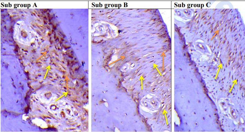 Fig. (6): Sub Gp A:  A photomicrograph of the PDL fibers of group IV at 7th day showing positive cytoplasmic cellular staining of fibroblast/fibrocyte (yellow arrows) with extracellular matrix staining between PDL fibers (orange arrows) but less than of group II.  Sub Gp B: A photomicrograph of the PDL fibers of group IV at 15th day showing a  reduction of positive intracellular staining (yellow arrows) and also reduction of extracellular staining (orange arrows).  Sub Gp C: A photomicrograph of the PDL fibers of group IV at 30th day showing slight more  reduction of positive intracellular staining (yellow arrows) and also less staining of extracellular matrix (orange arrows).  (Org. mag. x200 counterstain: Hematoxylin)